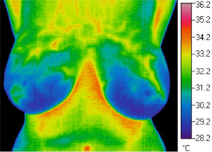 Thermogram 4 months post treatment
