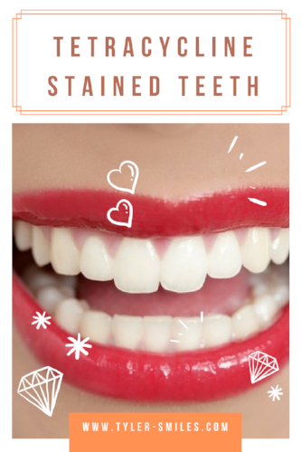 Tetracycline stained teeth (3).png