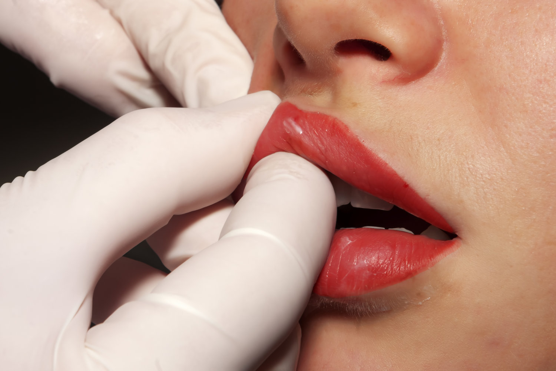 Should I massage filler lumps? — Subtle Beauty Aesthetics