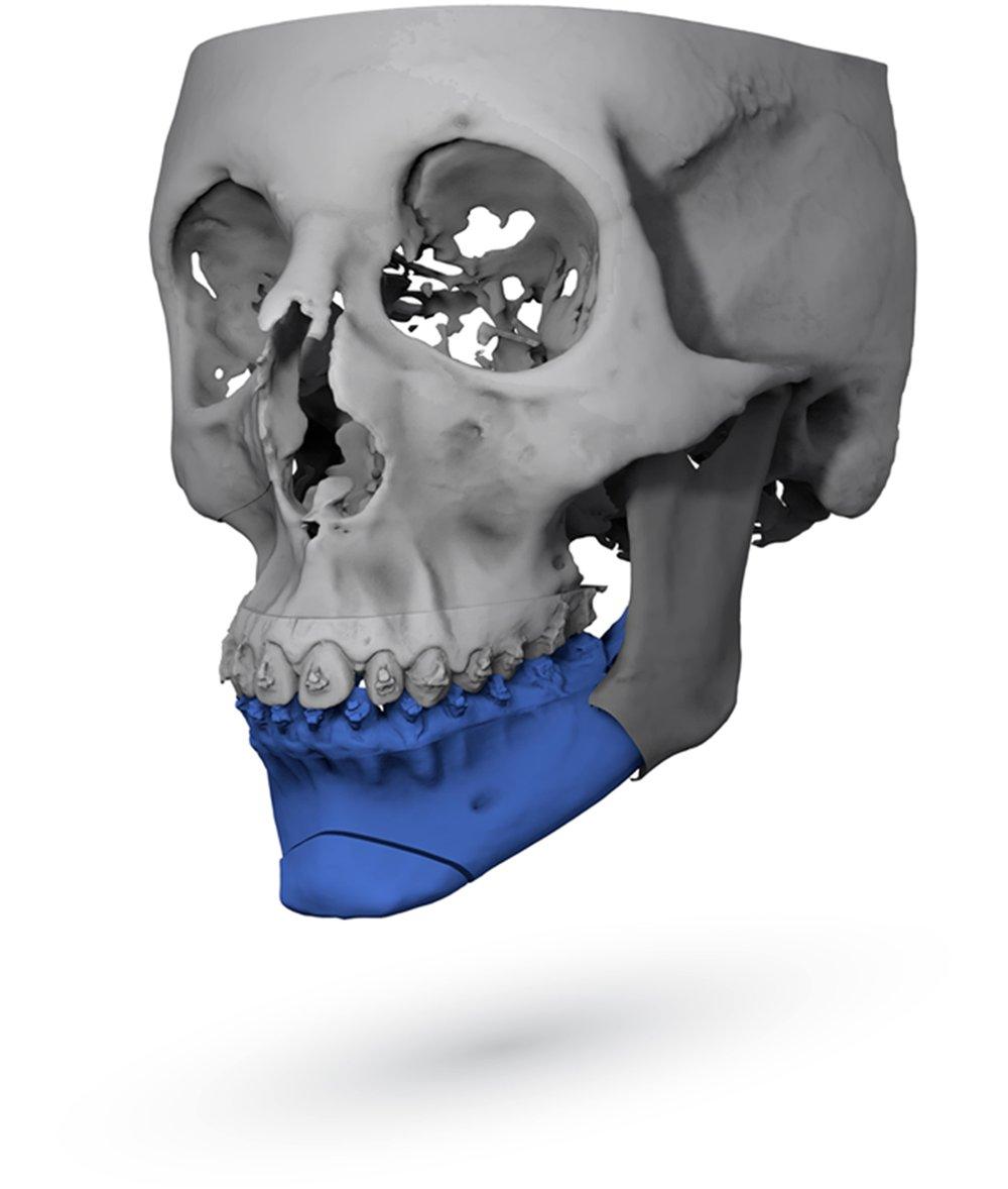 Orthognathic Segmented Skull Image by ImmersiveTouch IVSP