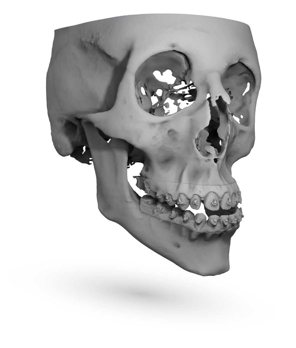 Final Orthognathic Skull Position by ImmersiveTouch IVSP