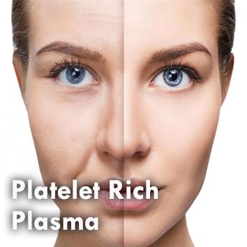 Dermal_Platelet Rich Plasma.jpg