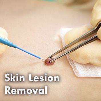 Dermal_Skin Lesion.jpg