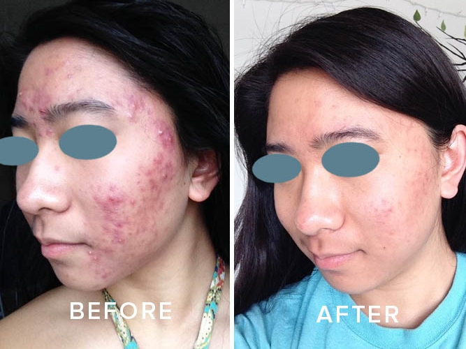 True Simplicity Acne Clinic Long Distance Clients 1
