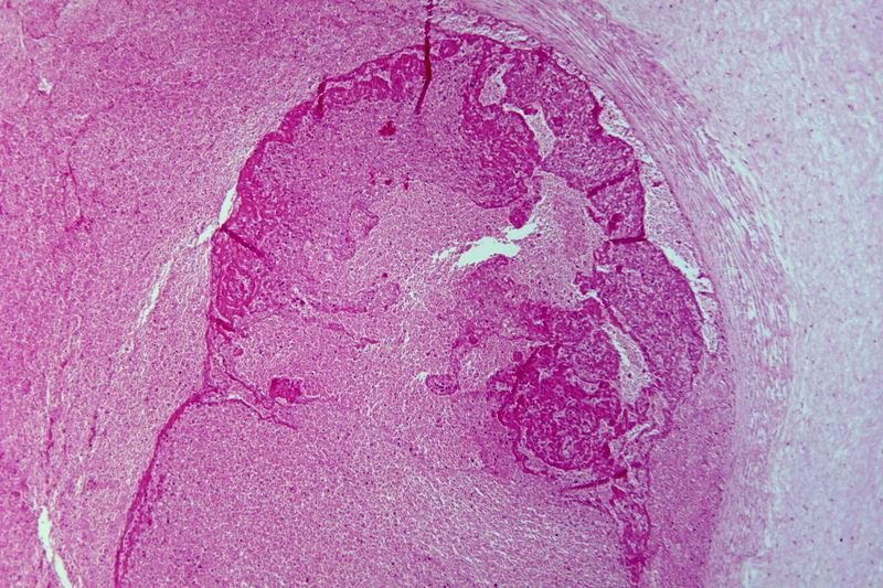 Umbilical vein thrombosis