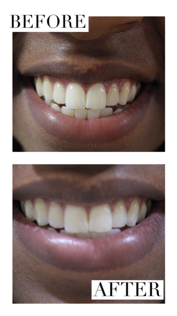 You can see that my teeth (though to the naked eye may seem white) they had a yellow tint that was removed within a few uses. I still have some of the whitening solution so I will continue to get even whiter!