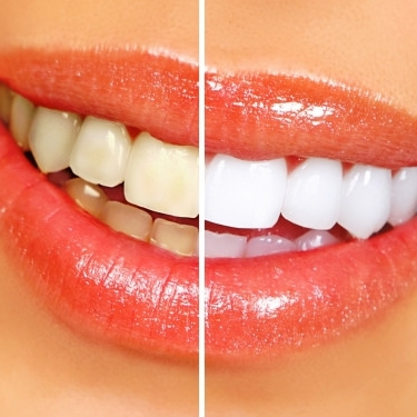 Zahnaufhellung / Zahnbleaching - Hochmodernes Verfahren. Schmerzfrei & schonend auch Samstags! Schenken Sie Ihren Zähnen ein neues Strahlen!