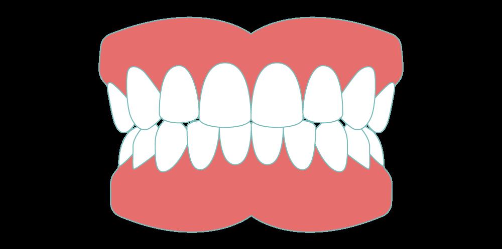 dentures-sudbury-.png