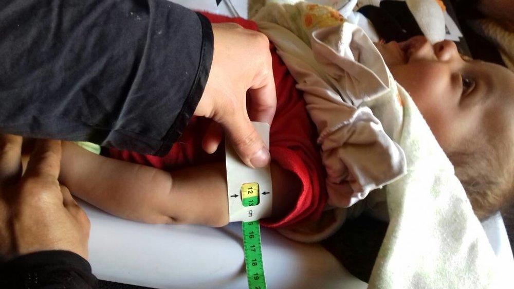 MUAC > 12cm - Bracelet de malnutrition - En dessous de 12,5 cm, Oualid a été diagnostiqué en état de malnutrition.