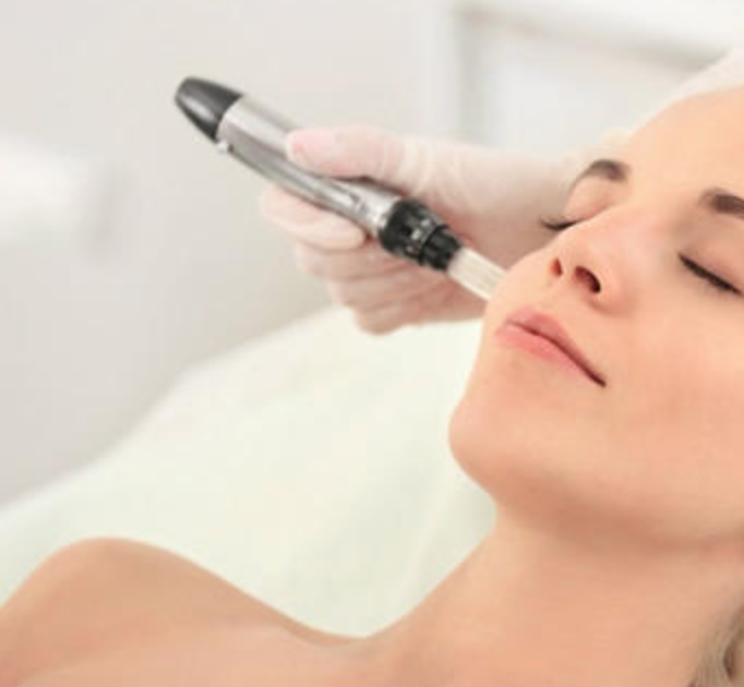 MICRONEEDLING (DERMAFRAC) - The next generation on from laser therapies without the side effects, pain or downtime. Completed under a topically applied anaesthetic.Microneedling is used to create micro-channels just penetrating the epidermal / dermal layer of the skin tissue in different areas of the face, neck and decolletage. The result is increased collagen production naturally. Improving texture, reducing fine lines & scarring by stimulating collagen production.Nothing is injected into the skin.