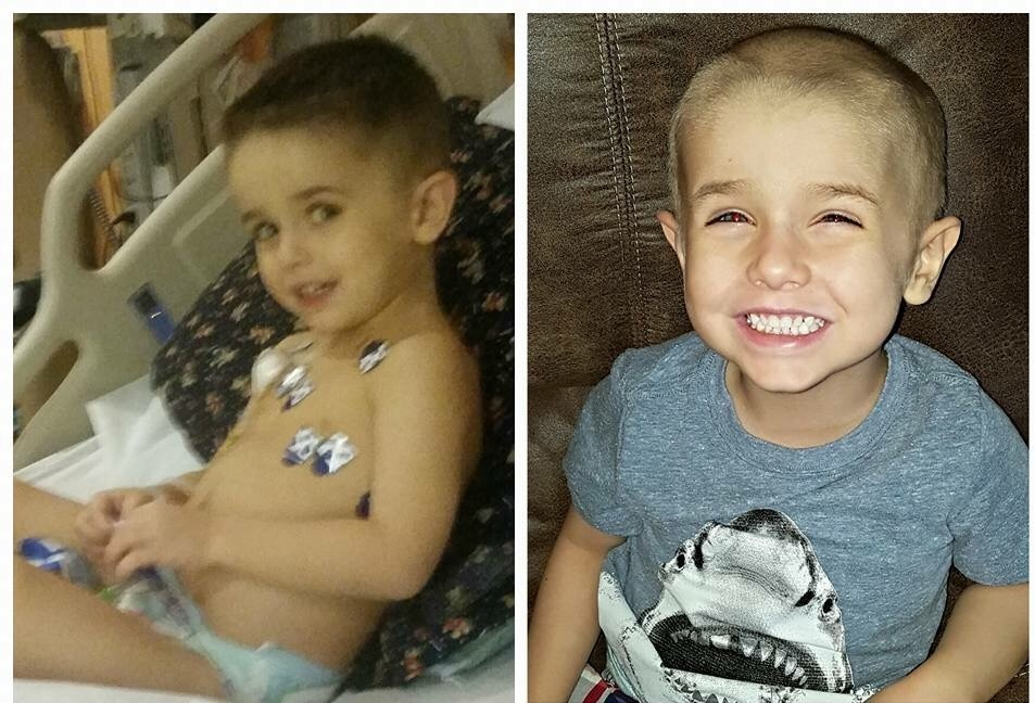 Jackson during and after treatment for cancer