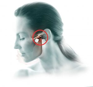 Temperomandibular Joint (TMJ)