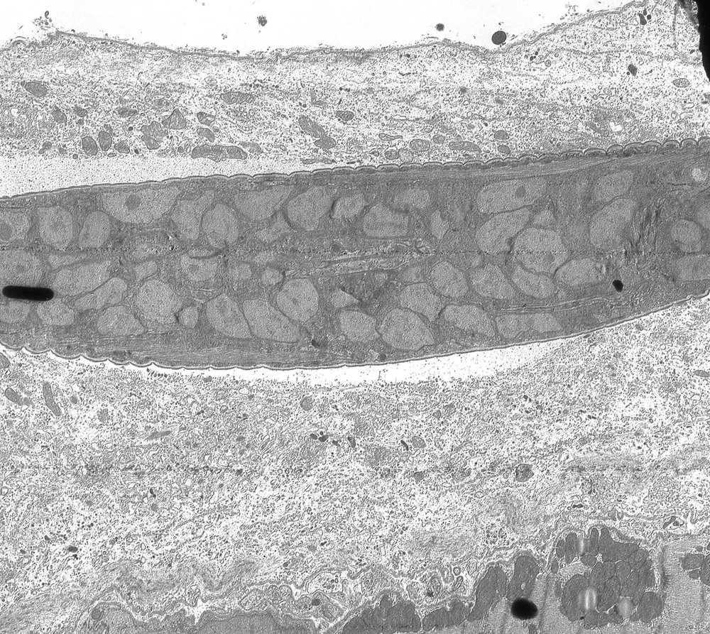 L1 inside developing nurse cell. 4 da post-injection. Note lack of integration of host cell cytoplasm with larval cuticular surface. TEM