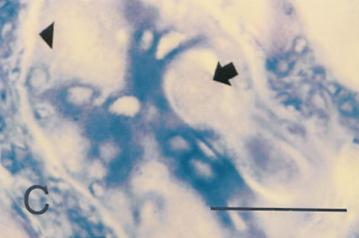 In situ hybridization of sections from mouse tissue 15 days after injection, using a probe for type IV collagen.