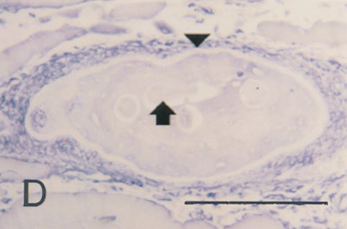In situ hybridization of sections from mouse tissue 8 months after injection, using a probe for type IV collagen. Note lack of signal.