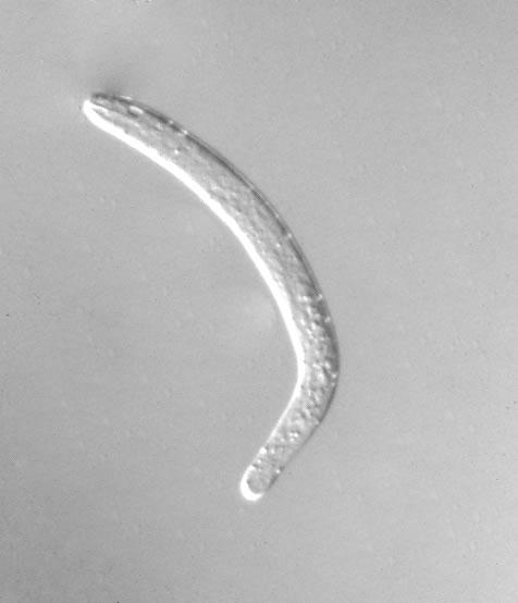 Newborn Larva (Nomarski, high mag)