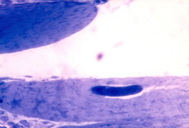 L1 inside developing nurse cell. 4 days post-injection. Note vacuole around worm. Thick epon section.