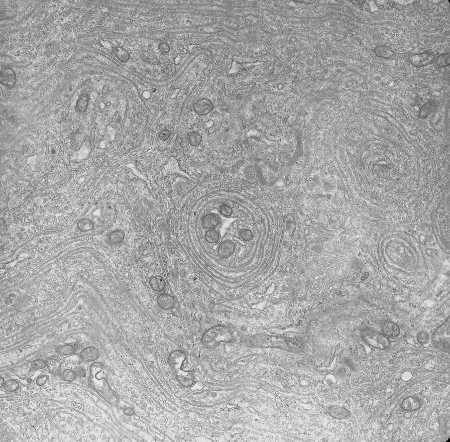 Mature nurse cell cytoplasm 20 days after injection of newborn larvae. Note lack of contractile elements and presence of whorls of smooth membrane. TEM