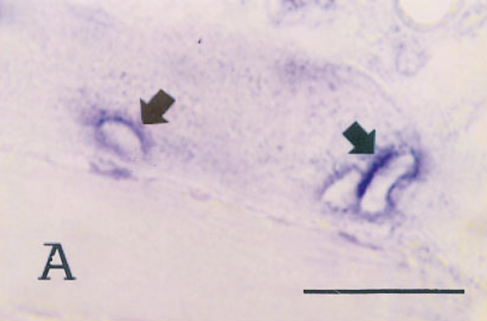 In situ hybridization of sections from mouse tissue 24 days after infection, using a probe for type VI collagen.