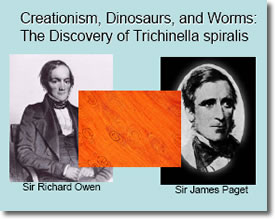 Discovery of  Trichinella spiralis