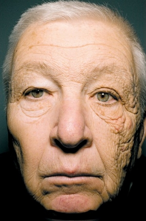 skin cancer picture.jpg