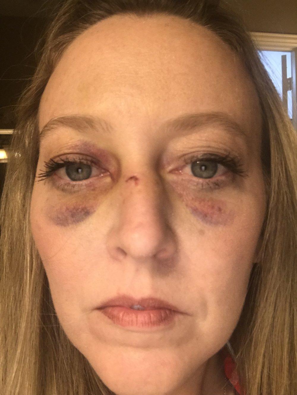 Jennifer Leedy three days after the attack.