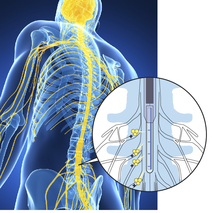 An organic electronic ion pump (OEIP) for therapeutic substance delivery into the spinal cord.