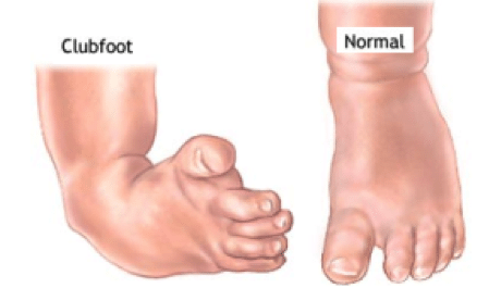 club-foot1.png