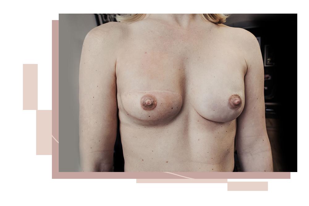 Brustwarzen Rekonstruktion Salzburg, Eva Schatz, MINT CLUB Tattoo Atelier,