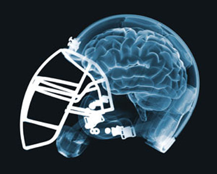 gq-brain-injury-football