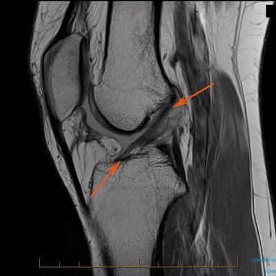 ACL tear MRI