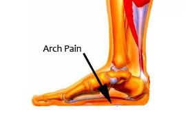 Arch Pain.jpg