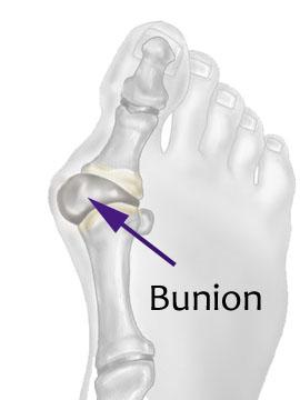 Bunion2.jpg