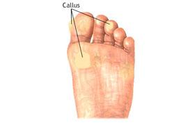 Callus.jpg