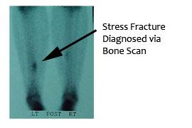 Bone Scan Stress fx.jpg