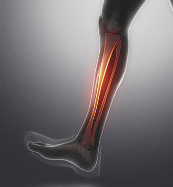 Shin Splint.jpg