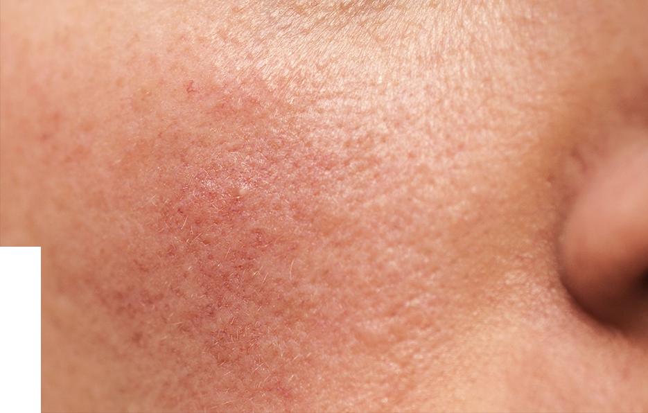 capillaries.png