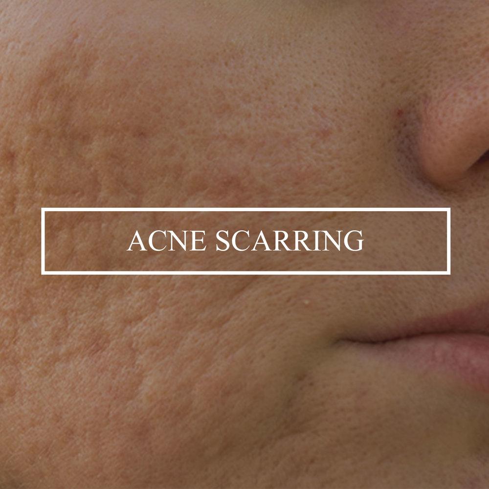 acne-scars.jpg