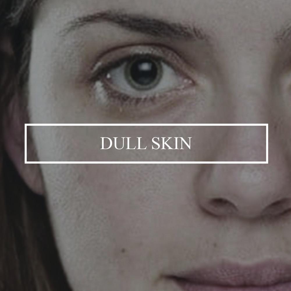 dull-and-tired-skin.jpg