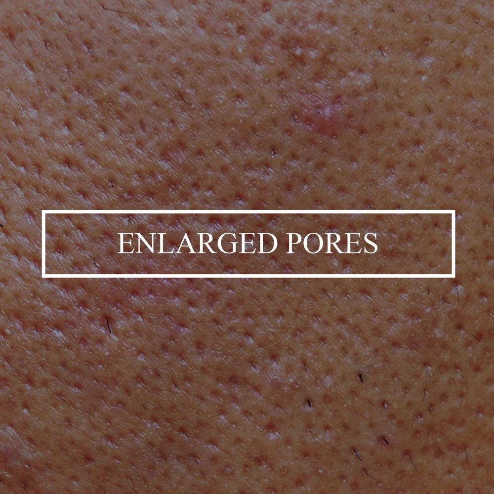 Large-Pores-1.jpg