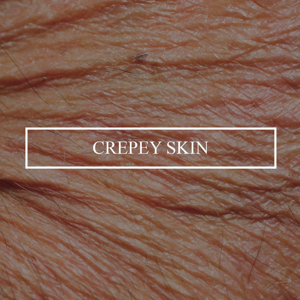 wrinkled_crepey_skin_closeup.jpg