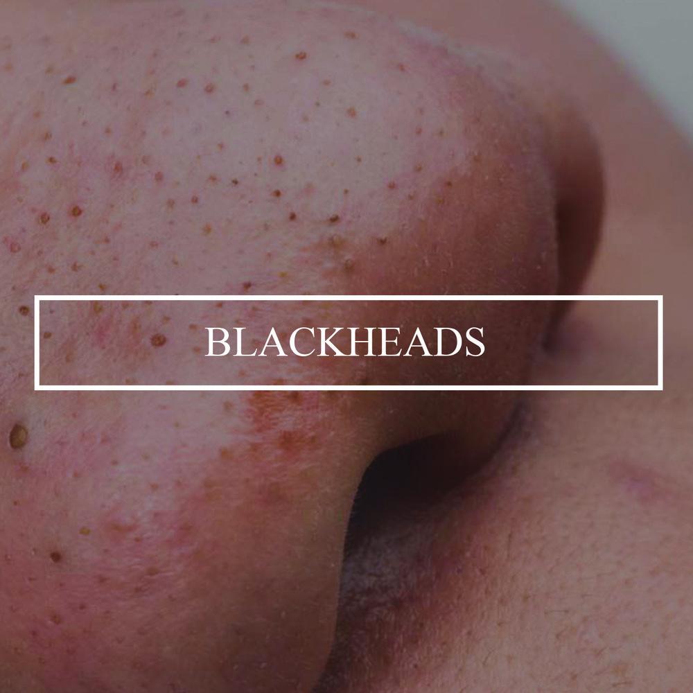 blackhead-squeezing-videos.jpg