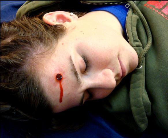 Portfolio_Page_10_wounds_copy-582x478.jpg
