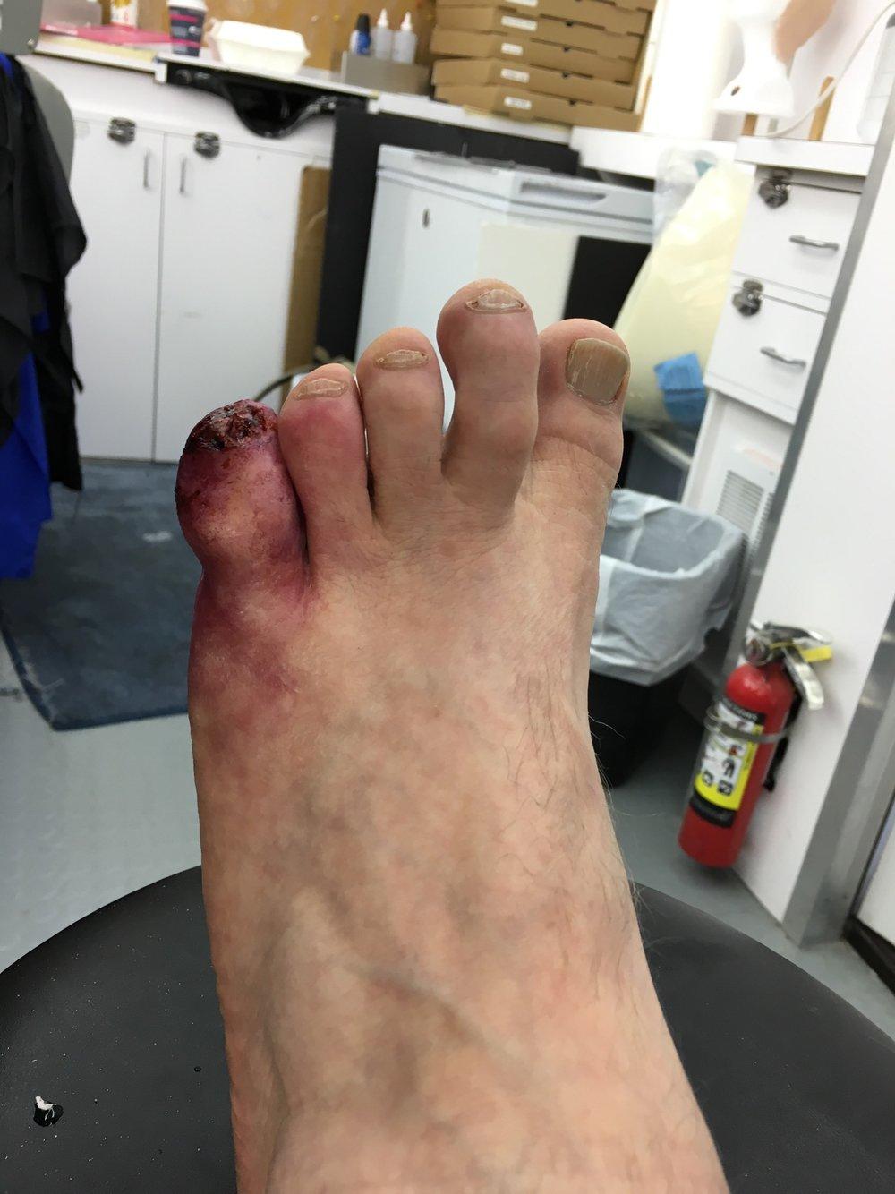 Custom Prosthetic