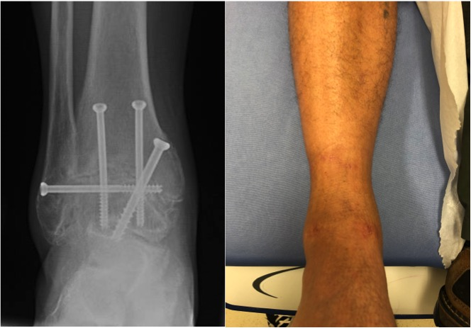 4. Arthroscopic Ankle Fusion.jpg