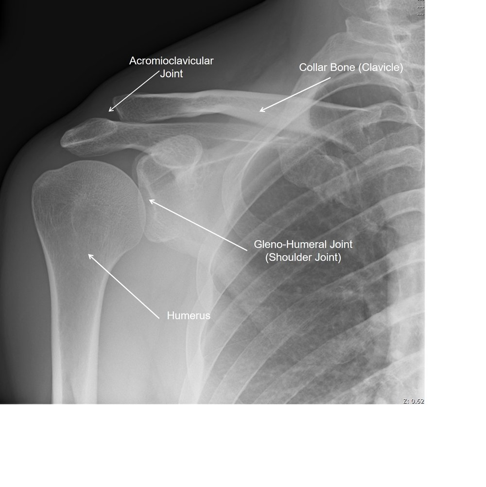 This is a X-ray view of a right shoulder from the front.