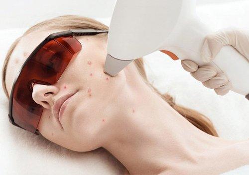 Лечение акне (угревой сыпи) лазером
