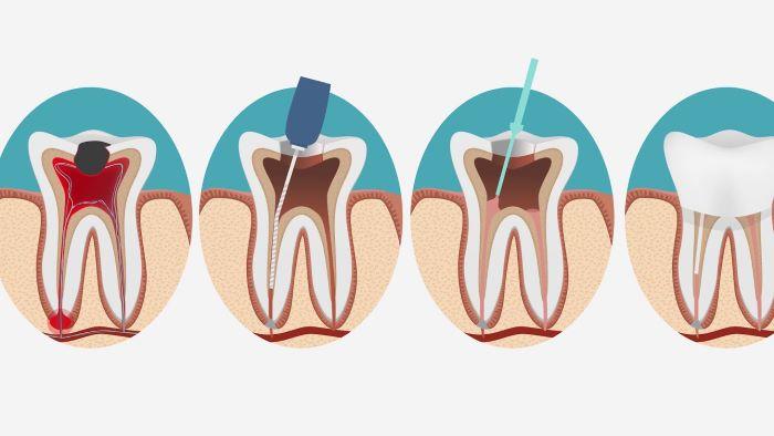 киста зуба удалить в москве