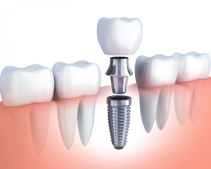 Зубные импланты