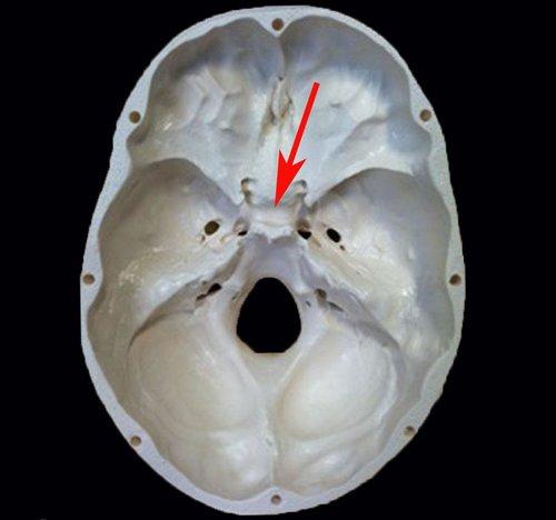 Anatomy: Sella Turcica — Med Student Neurosurgeon